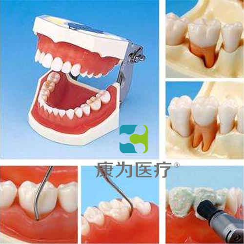 """""""康为医疗""""牙周外科实习用牙列模型"""