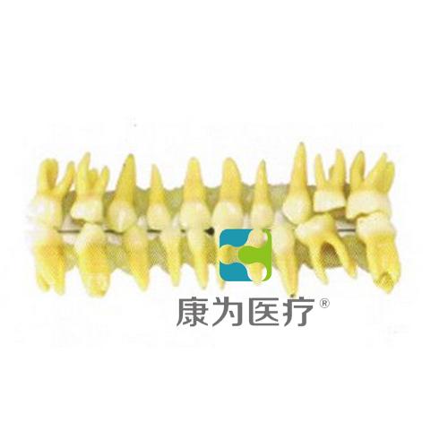 """""""康为医疗""""乳牙模型"""