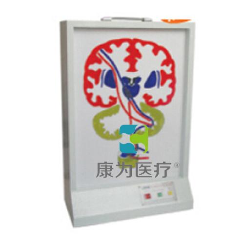 """""""康为医疗""""锥体外系(皮质-脑桥-小脑系)电动模型"""