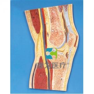 """""""康为医疗""""膝关节剖面模型"""