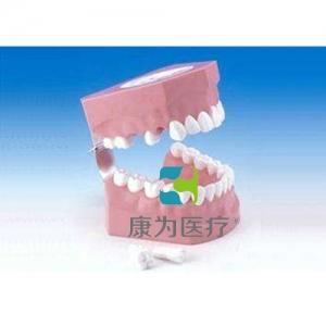 """""""康为医疗""""刷牙指导模型(恒牙)"""
