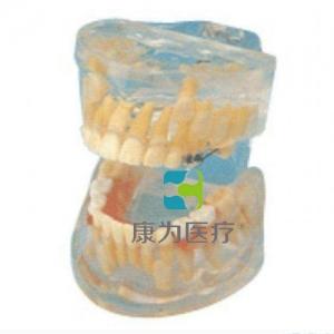 """""""康为医疗""""透明乳牙发育模型(保隙装置模型)"""
