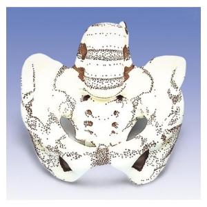 德国3B Scientific®骨盆